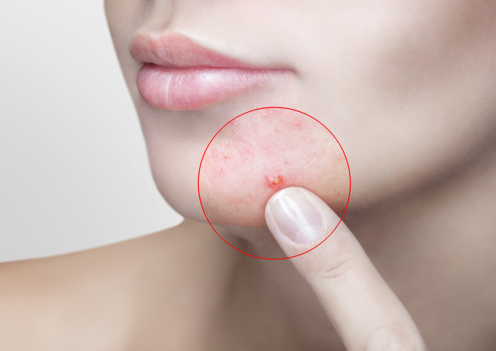 L'acné – définition, causes et soins